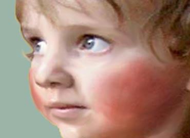 Cómo Reaccionar ante la Masturbación Infantil