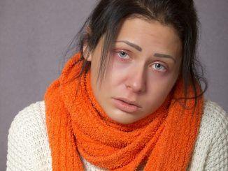 Cómo Te Afecta Psicológicamente La Gripe